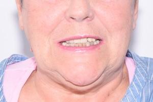 Восстановление зубов на безкаркасных протезах, фото до