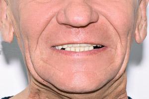 All-on-4 на имплантах Нобель для обеих челюстей, фото до