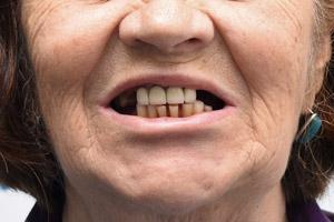 Восстановление обеих челюстей с применением имплантов Zygoma, фото до