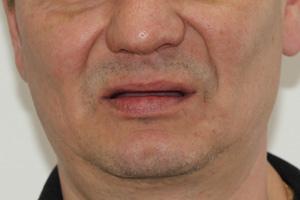 Комплексная имплантация при полной адентии, фото до
