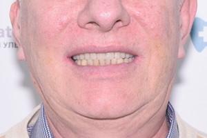 All-on-4 с имплантами Zygoma при сильной атрофии костной ткани, фото до