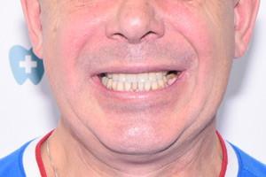 All-on-4 с имплантами Zygoma для верхней челюсти, фото до