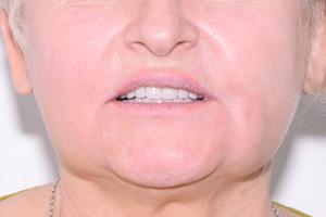 Скуловая имплантация при полной адентии, фото до