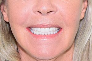 Новые зубки за 3 дня, фото до