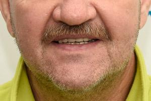 Новые зубы для верхней челюсти за 3 дня на имплантах Zygoma , фото до