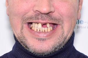 Все-на-4 для восстановления верхней челюсти, фото до