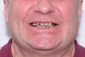 All-on-4 на замену старым зубам для верхней и нижней челюсти, фото до
