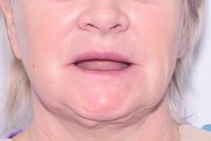 All-on-4 от Nobel Biocare для верхней и нижней челюсти, фото до