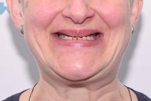 All-on-4 и новая улыбка на следующий день, фото до