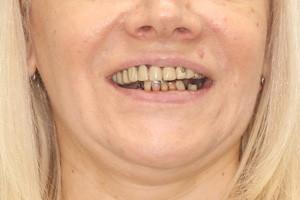 ProArch на четырех имплантах Straumann для верхней и нижней челюсти, фото до