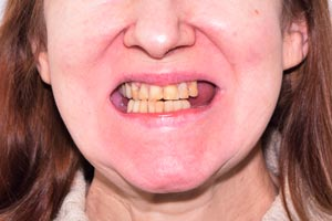 All-on-4 на обе челюсти и новая улыбка