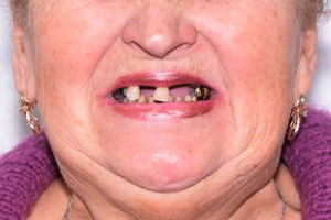 All-on-4 на обе челюсти - дентал фейслифтинг, фото до