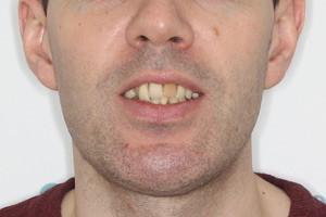 Все-на-4 для обеих челюстей, фото до