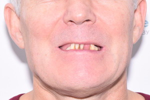 Все-на-4 для нижней челюсти, фото до