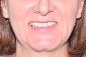 Протезирование All-on-4 верхней челюсти и виниры для нижней челюсти, фото до