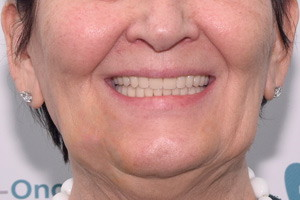 All-on-4 на нижнюю челюсть и новый съемный протез на верхнюю, фото до