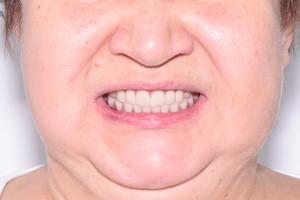 Импланты Nobel и новые зубы, фото до