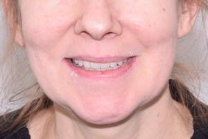 All-on-4 на обе челюсти и новая улыбка, фото до