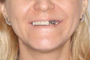Все-на-4 для верхней и нижней челюсти. Импланты Nobel Zygoma, фото до