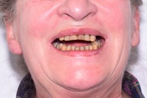 Все-на-4 с имплантами Zygoma для верхней челюсти, фото до