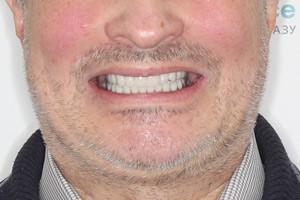Все-на-4 с зигоматическими имплантами для верхней челюсти, фото до