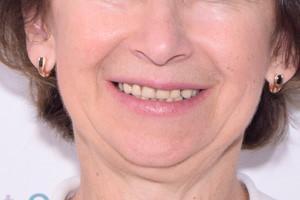 Протезирование обеих челюстей по протолу All-on-4, фото до