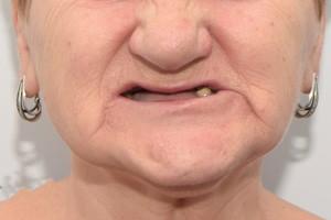 Новые зубы в замен двум имплантам и мостам, фото до