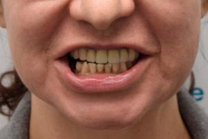 All-on-4 для верхней челюсти и три импланта для жевательных зубов