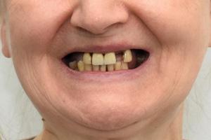 Зубы на нижней челюсти за 1 день и съемный протез для верхней, фото до
