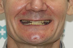 Новые зубы за 1 день для обеих челюстей, фото до