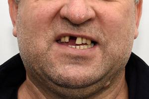 Новые зубы на верхней и нижней челюстях за 1 день , фото до