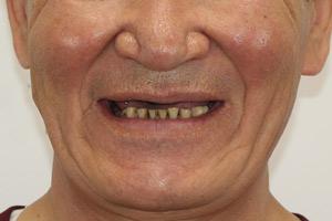 All-on-4 на обе челюсти для пациента из Якутии, фото до
