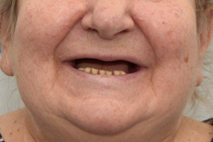 Комплексная имплантация обеих челюстей за 3 дня, фото до