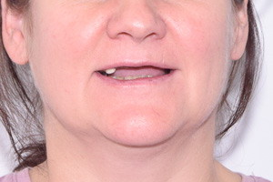 Новая улыбка за 3 дня, имплантация зубов, фото до