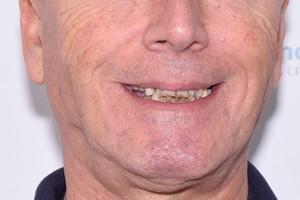 Новые зубы для пациента из г.Нальчик, фото до
