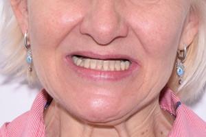 Все-на-4 с отсроченной нагрузкой для восстановления зубов верхней челюсти, фото до