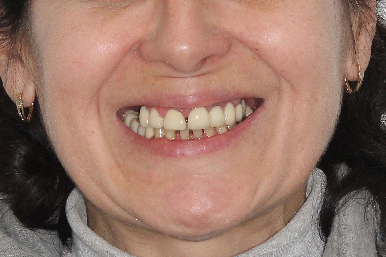 ALL-on-4 с отсроченной нагрузкой для верхней челюсти, фото до
