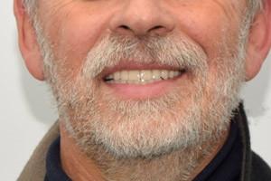 All-on-4 на имплантах Nobel для обеих челюстей, фото до