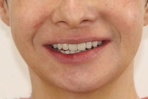Восстановление зубов на обеих челюстях по протоколу All-on-4, фото до