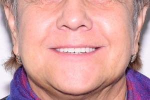Новая жизнь с новыми зубами, фото до