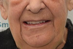 Новые зубы для пациентки 78 лет, фото до