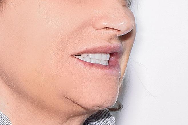 Протезирование All-on-4 на обе челюсти, фото до