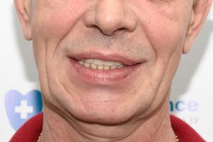 Зубы за 1 день на обе челюсти, фото до
