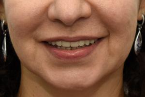 All-on-4 для верхней челюсти и три импланта для жевательных зубов, фото до