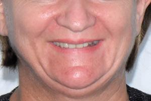 Зубы на нижней челюсти за 3 дня, фото до