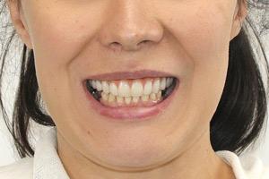 Все-на-4 для верхней челюсти и единичная имплантация для нижней, фото до
