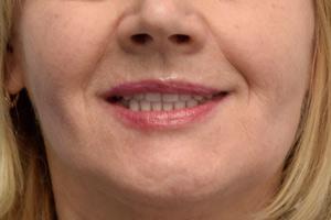 All-on-4 на замену съемному протезу и проблемным зубам, фото до