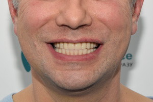 Протезирование обеих челюстей All-on-4, фото до