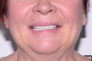 Новые зубки на замену мостам и проблемным имплантам, фото до
