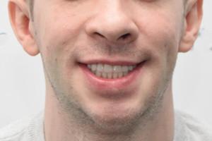 Комлекс для нижней челюсти и съемный протез для верхней, фото до